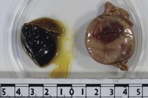 kardiyak tümörler 2